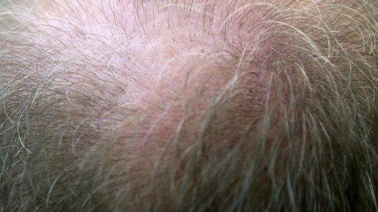 Quali sono i tipi di trapianto per capelli?