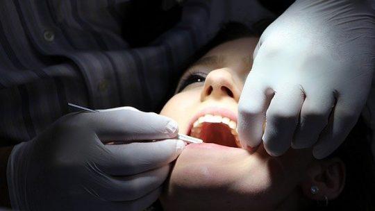 Quanto durano le faccette per i denti?